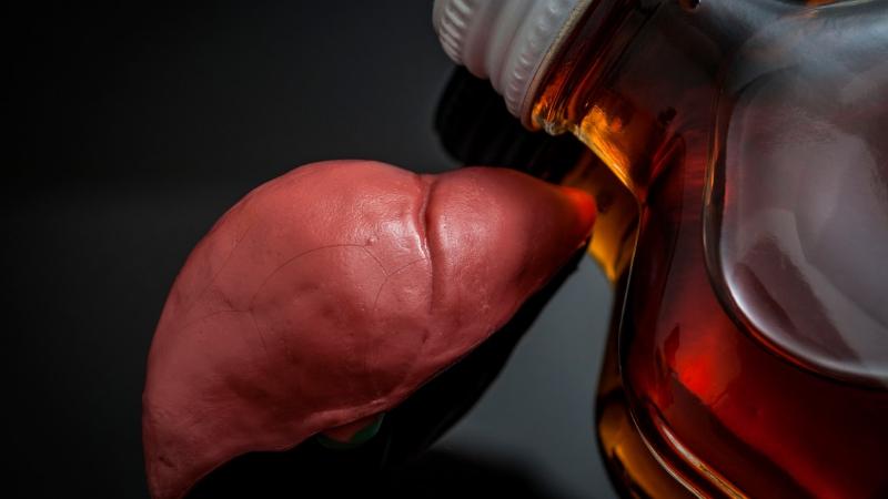 Liver Alcohol