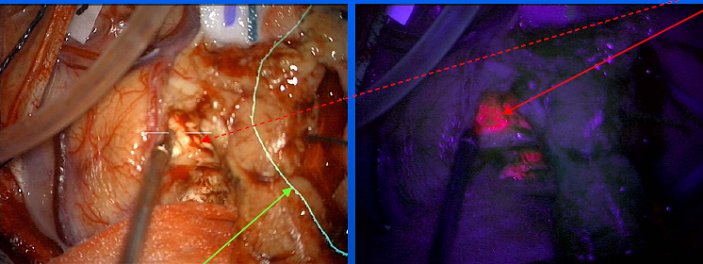 Brain tumor under normal light (red arrow on left) 5-Aminolevulinic acid makes the tumor fluoresce pink for more precise identification of its borders (red arrow on right).