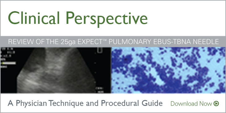 Clinical Perspective - Review of the 25ga Expect pulmonary EBUS-TBNA Needle