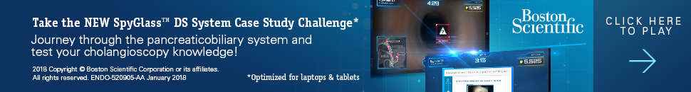 SpyGLass DS Direct Visualization Challenge