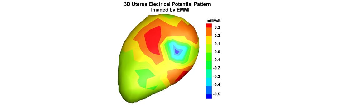 EMMI images of uterine contractions in women