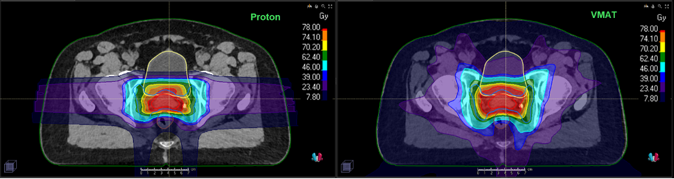 Comparative images of proton therapy (left) with minimal radiation to surrounding tissues compared to photon therapy (right).