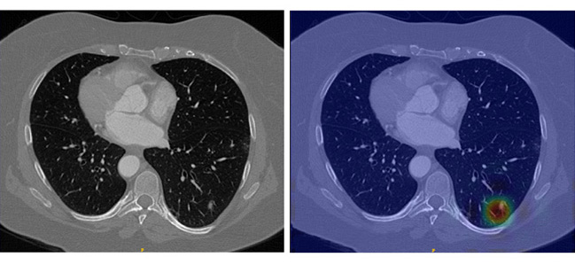 Lung CT