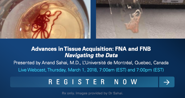 Advances in Tissue Acquisition: FNA and FNB