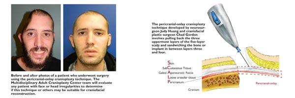 Multidisciplinary Adult Cranioplasty Center