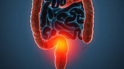 Innovations in Inflammatory Bowel Disease Management
