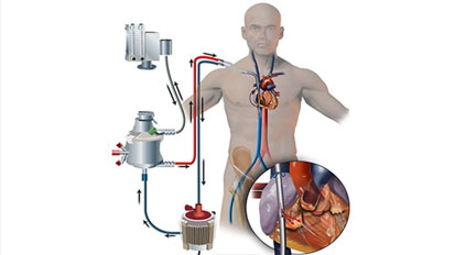 ECMO as a Bridge to Lung Transplant