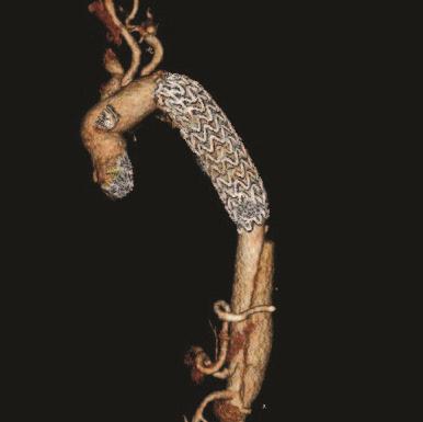 postoperative 3D Image