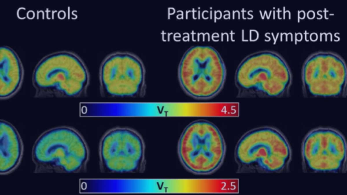 PET Imaging of Glial Activation in Patients with Post