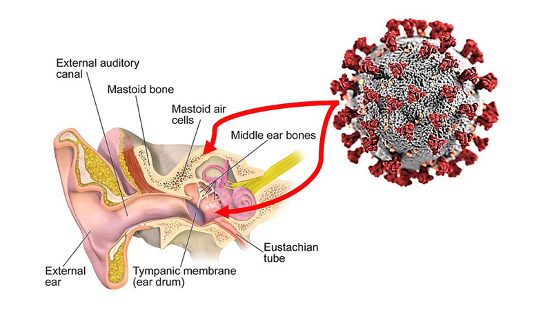 SARS-CoV-2 Virus in Middle Ear and Mastoid