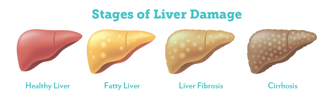 stages-liver-disease