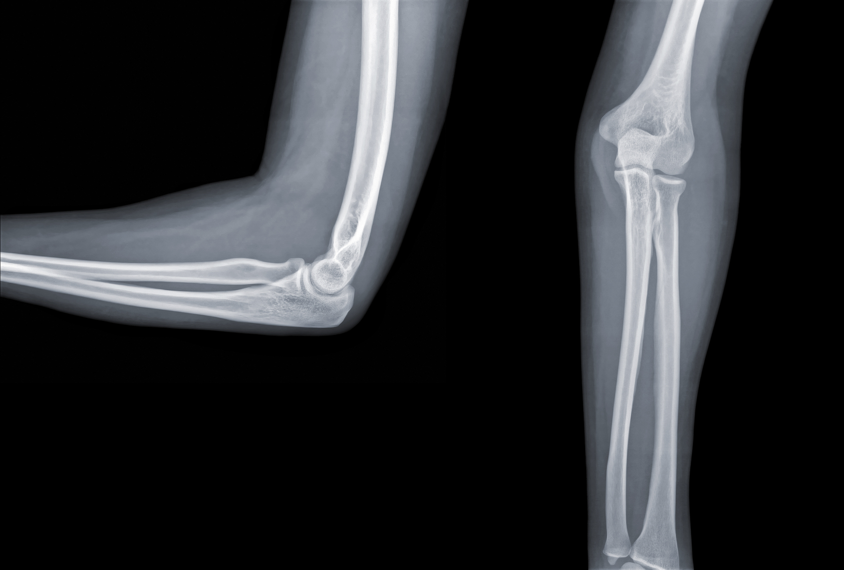 Terrible Triad Injuries and the Complex Elbow: Anatomy and ...